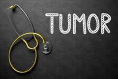 Tumor on Chalkboard. 3D Illustration. Tumor. Medical Concept, Handwritten on Black Chalkboard. Top View Composition with Chalkboard and Yellow Stethoscope royalty free stock photos