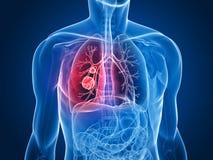 Tumor del pulmón ilustración del vector