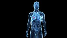 Tumor del pulmón libre illustration