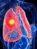 Tumor do pulm?o de uma mulher ilustração do vetor