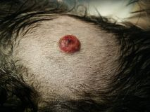 Tumor on skin Royalty Free Stock Images