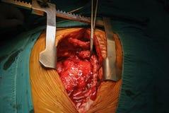 Tumore cardiaco Fotografia Stock