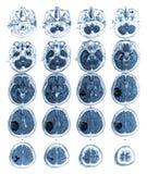 Tumore cerebrale di manifestazione del cervello di RMI al lobo parietale giusto Fotografie Stock