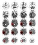Tumore cerebrale di manifestazione del cervello di RMI al lobo parietale giusto Immagini Stock