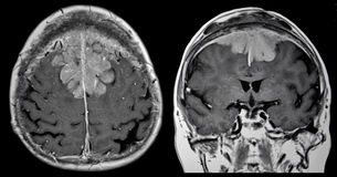 Tumore cerebrale, RMI fotografia stock libera da diritti