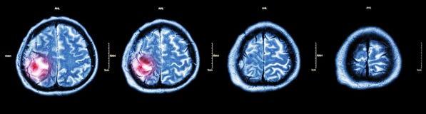 Tumore cerebrale (scansione TC del film del cervello: mostri la parte del cervello con il tumore) Immagine Stock Libera da Diritti