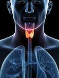 Tumore della tiroide evidenziato Fotografia Stock Libera da Diritti