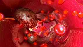 Tumour cells in blood vessels Royalty Free Stock Images
