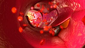 Tumour cells in blood vessels Stock Image