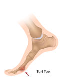 Turf toe. Sprain or tears of ligaments of the big toe joint, a common sport injury, eps10 Stock Photography