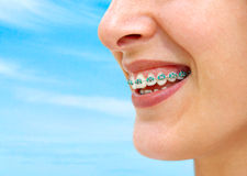 Turquoise Braces. Detail of young woman smile showing white teeth with braces Royalty Free Stock Photos