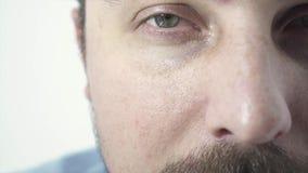 Twarz chora osoba, nałogowiec zdjęcie wideo