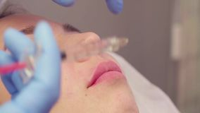 Twarz pacjent podczas wargi augmentaci zbiory