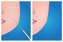 Twarzy liposuction, przedtem póżniej Zdjęcia Royalty Free