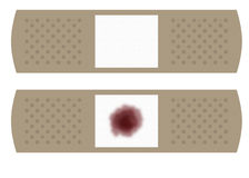 Twee Grote Verbanden vector illustratie