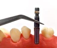 Tweezers with dental implant Stock Photo