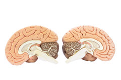 Two artificial human hemispheres Royalty Free Stock Image