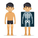 Two Cartoon Style Boy with X-ray Screen and Skeleton. Vector Stock Photography
