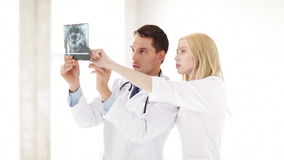 Two doctors with x-ray prints stock video