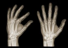 Two hands on x-ray Royalty Free Stock Photo