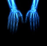 Two hands in x-rays Stock Images