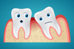 Two tooth and gum hurt. Two tooth one of which is inclined and gum hurt Stock Images