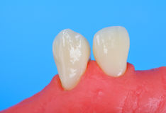 Two tooth Royalty Free Stock Photography