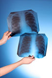 Two X-Ray Images of chest on blue background Royalty Free Stock Photo