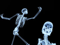 Two Xray Bones 2. An image of two xrays of some skeletons, a good Halloween or possible medical based image Stock Images