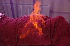 Tybetańczyka ogienia masaż Tradycyjna tibetan medycyna, pożarniczy traktowanie i bodycare pojęcie, obraz royalty free