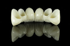 tylny bridżowy ząb Obraz Royalty Free