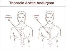 Typ brzuszny aortic aneurysm normalna aorta i powiększony ve ilustracja wektor