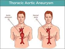Typ brzuszny aortic aneurysm normalna aorta i powiększony ve ilustracji