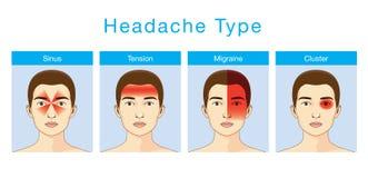 Typ migrena ilustracji