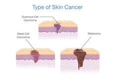 Type de cancer de la peau dans le style du vecteur 3D Image libre de droits