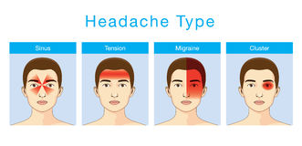 Type de mal de tête Photos libres de droits