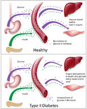 Type - diabetes 2 Royalty-vrije Stock Fotografie