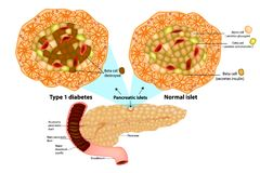 Type 1 diabetes Beta cell destroyed. The pancreas has many islets that contain insulin-producing beta cells and glucagon-producing. Type 1 diabetes Beta cell stock illustration