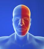 Type headache: Migraine Stock Image
