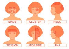 Type of headache pain. Different head pain illustration Royalty Free Stock Photography