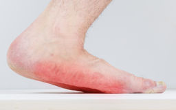 Type of male leg with strong flat feet. royalty free stock photos