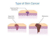 Type of Skin Cancer in 3D vector style. Medical illustration Royalty Free Stock Image