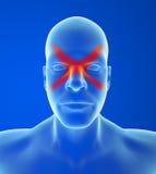 Typehoofdpijn: Sinus Stock Afbeelding