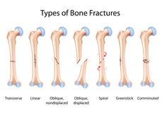 Typen der Knochenbrüche stock abbildung