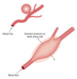 Typer av aneurysmen Fotografering för Bildbyråer