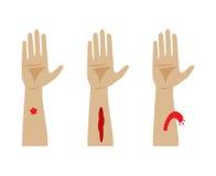 Typer av blödning också vektor för coreldrawillustration Royaltyfri Bild