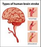 Typer av slaglängden för mänsklig hjärna royaltyfri illustrationer