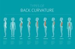Typer av tillbaka krökning Infographic medicinsk desease stock illustrationer