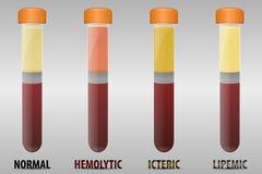Typer för allmänning för blodserum vektor illustrationer