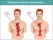 Types of abdominal aortic aneurysm. normal aorta and enlarged ve. Ssels. Vector diagram stock illustration